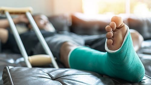 Injured man in cast laying down next to crutches